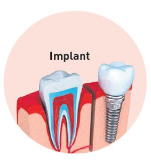 implant vitaldent- La Veu de l'Anoia - VeuAnoia.cat
